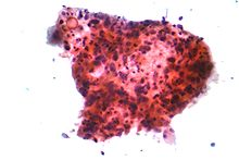 Squamous carcinoma lung 2 cytology