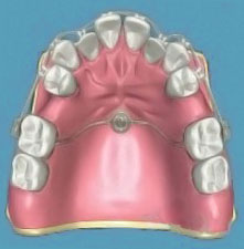 A graphical representation of an orthordontic dental implant