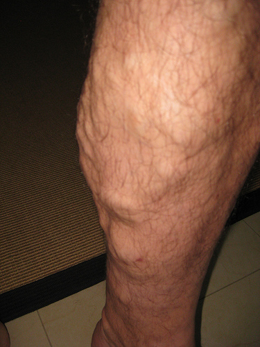 Varicose veins - photo by Thomas Pix